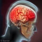 "$3 million ""diminished capacity"" award for brain injury."