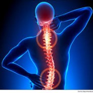 $90,000 damages for chronic neck and back pain.